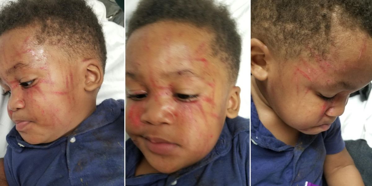 Mom of toddler attacked at daycare: 'You can't even put it into words...'