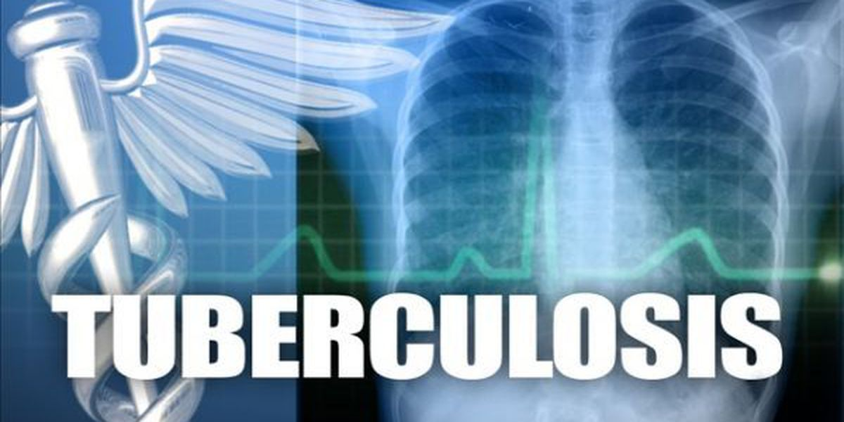 Active case of tuberculosis confirmed in Provine High School student