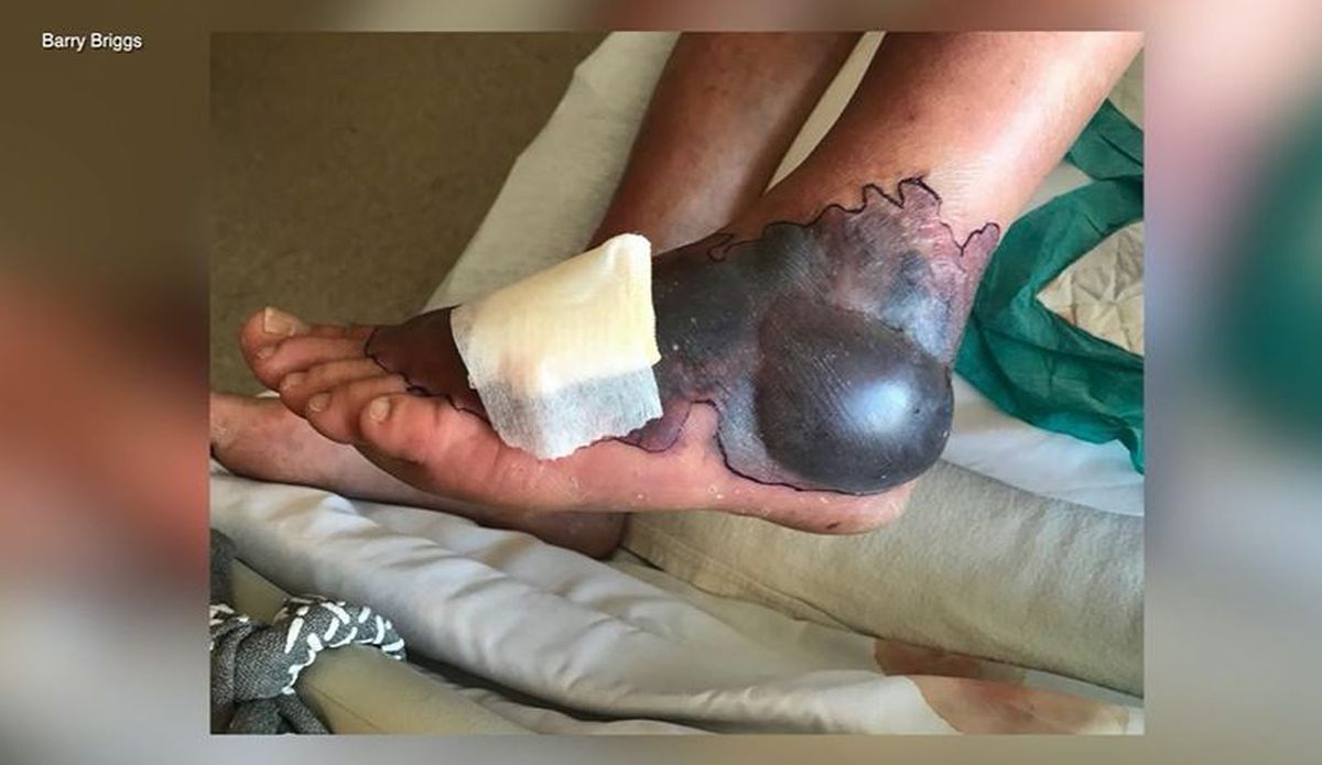 Dayton Gas Prices >> Man contracts rare flesh-eating bacteria while visiting Florida