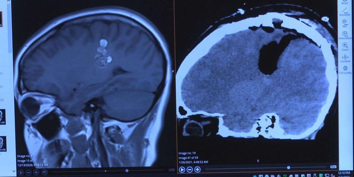 'He saved my life:' Coast woman undergoes brain surgery while awake