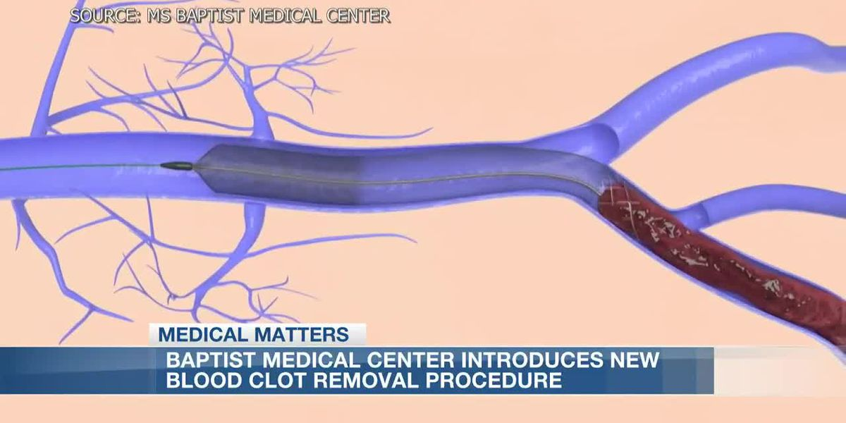 Baptist Medical Center introduces new blood clot removal procedure